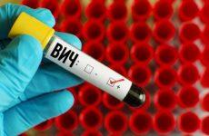 Как поднять иммунитет при ВИЧ инфекции